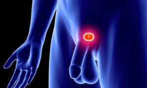 Какво-е-хиперплазия-на-простатата